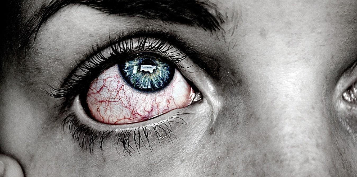 Rote Augen vom Kiffen